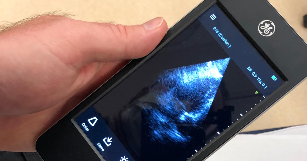 PMC Receives Three Handheld Ultrasound Devices for Emergency and Critical Care Departments